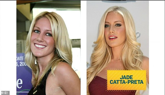 Before and after: The Hills star was shown in before and after photos